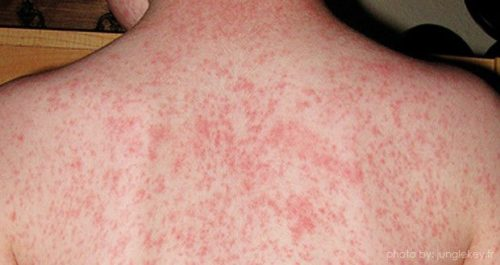 Measles Eliminated For First Time In Uk