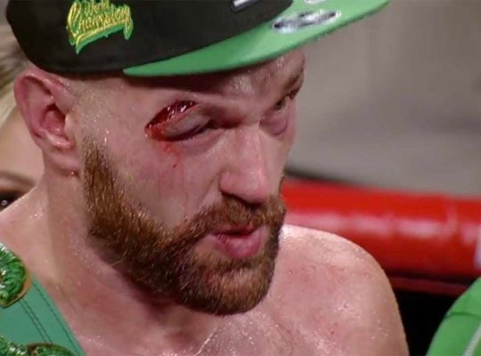 Tyson Fury's Warrior Heart Saved Him From Defeat